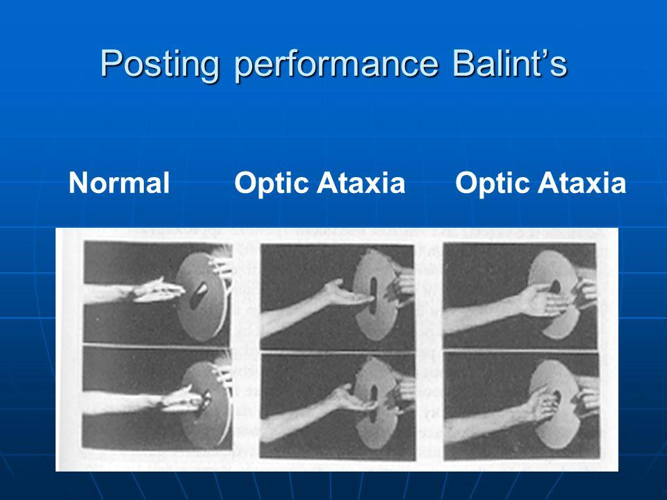 Normal Optic Ataxia Optic Ataxia Posting performance Balint's