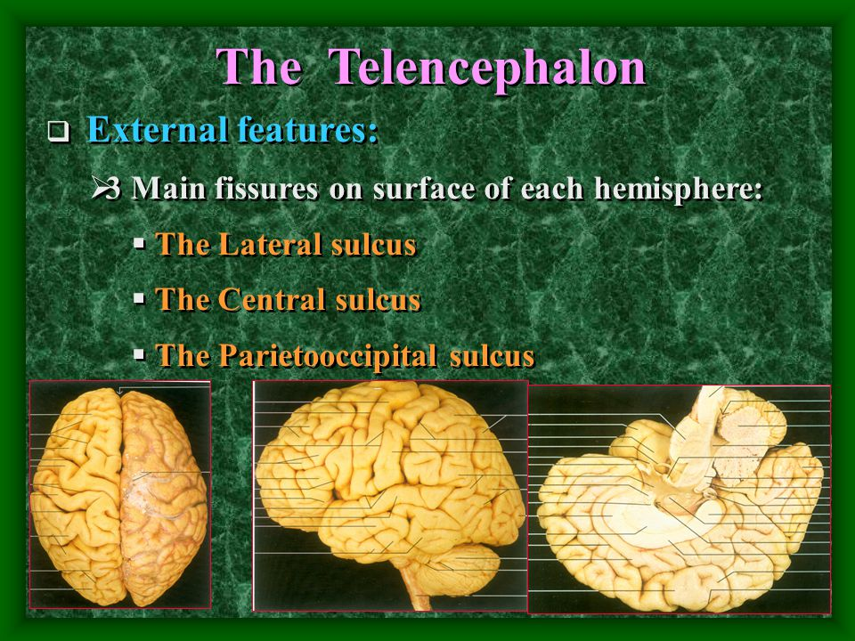 The Telencephalon  External features:  3 Main fissures on surface of each hemisphere:  The Lateral sulcus  The Central sulcus  The Parietooccipital sulcus  External features:  3 Main fissures on surface of each hemisphere:  The Lateral sulcus  The Central sulcus  The Parietooccipital sulcus