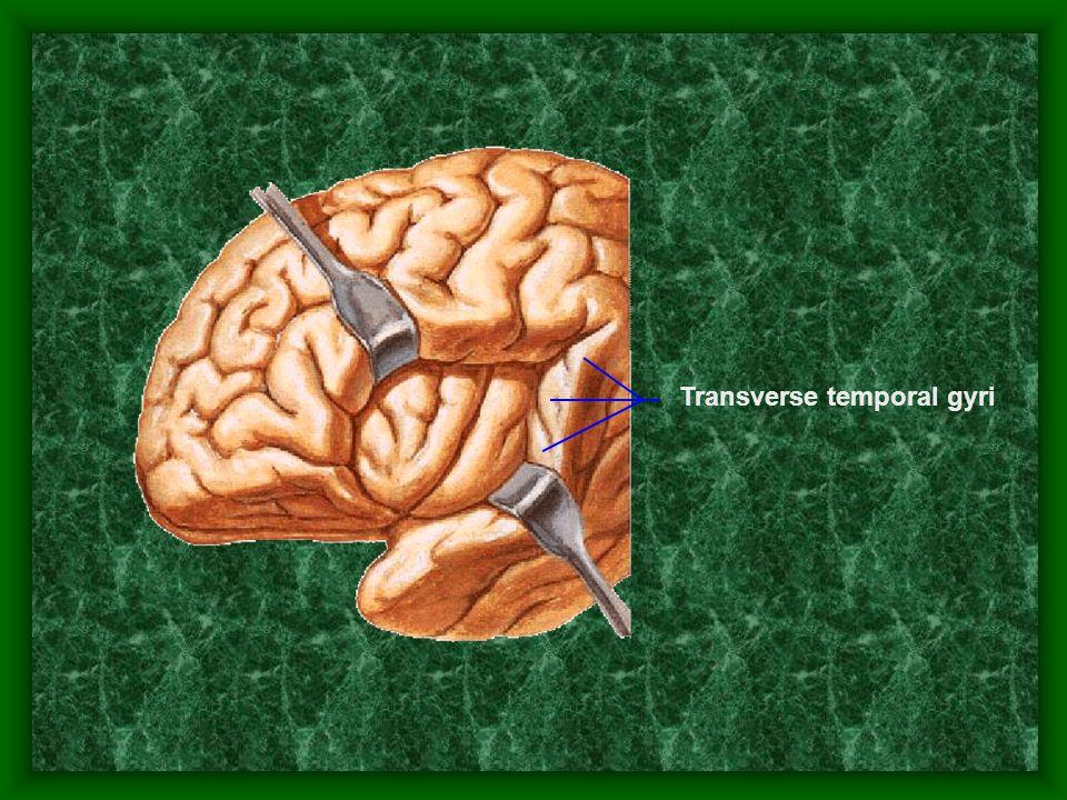 Transverse temporal gyri