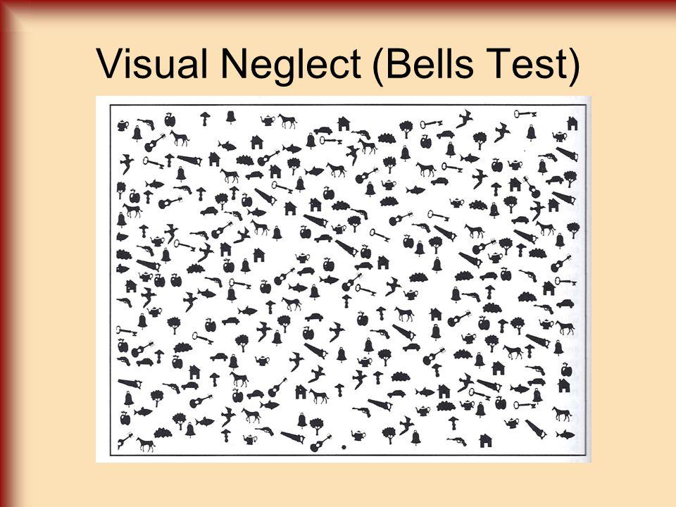 Visual Neglect (Bells Test)