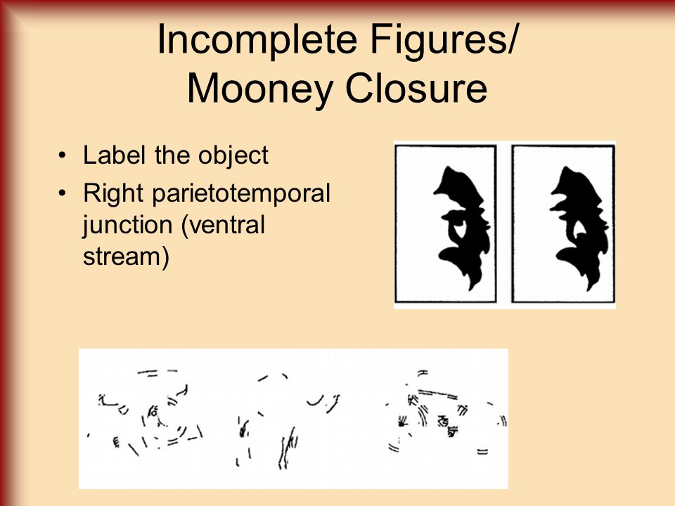 Incomplete Figures/ Mooney Closure Label the object Right parietotemporal junction (ventral stream)