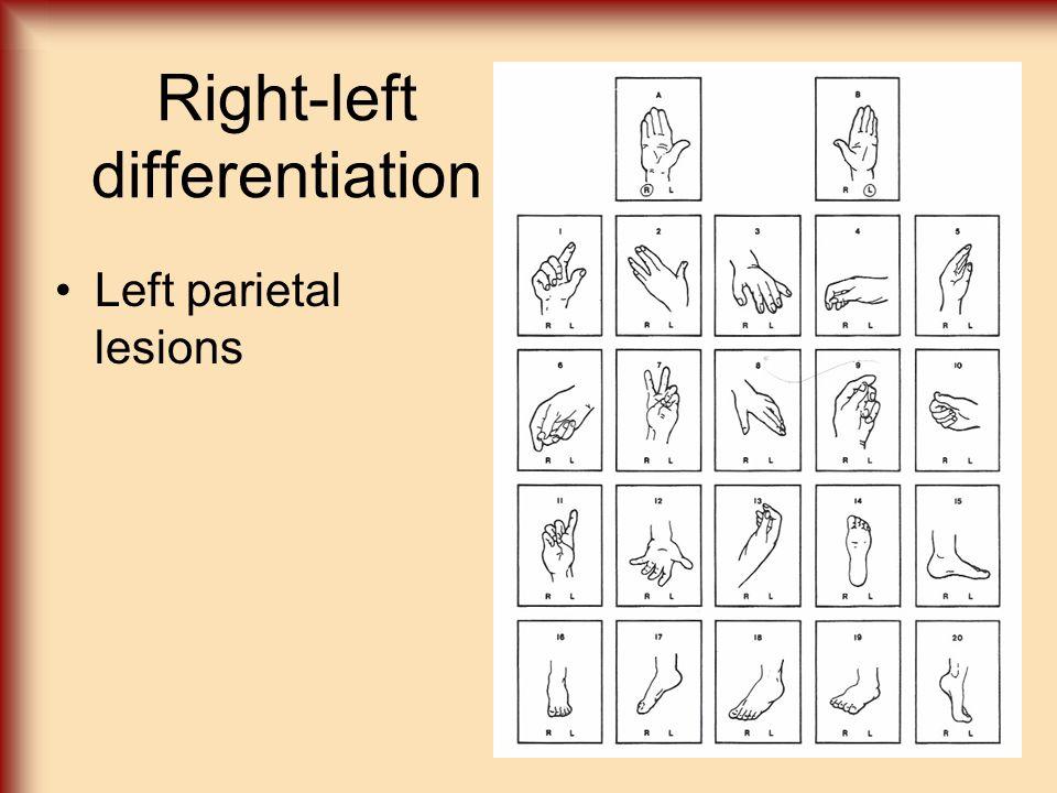 Right-left differentiation Left parietal lesions