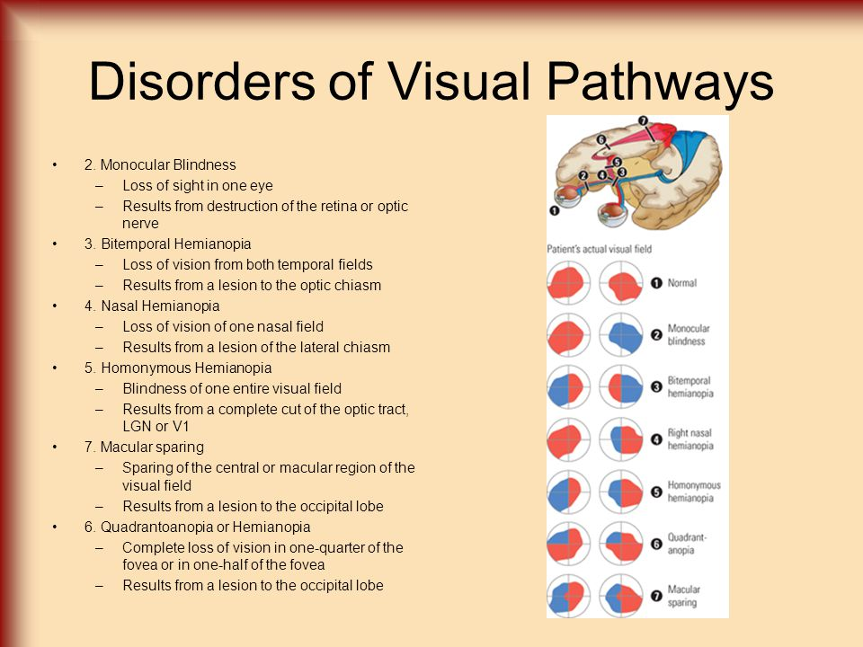 Disorders of Visual Pathways Field Defects –Scotomas - small blind spots –Results from small lesions to the occipital lobe