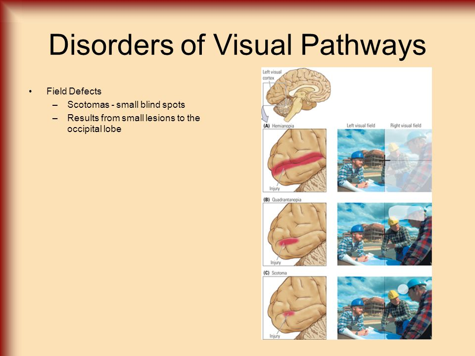 Visual Agnosia Object Agnosia –Apperceptive Agnosia Deficit in the ability to develop a percept of the structure of an object or objects (still see color, motion, acuity) Simultagnosia –Unable to perceive more than one object at a time Results from bilateral damage to the lateral parts of the occipital lobes –Associative Agnosia Can perceive objects, but cannot identify them Results from lesions to the anterior temporal lobes