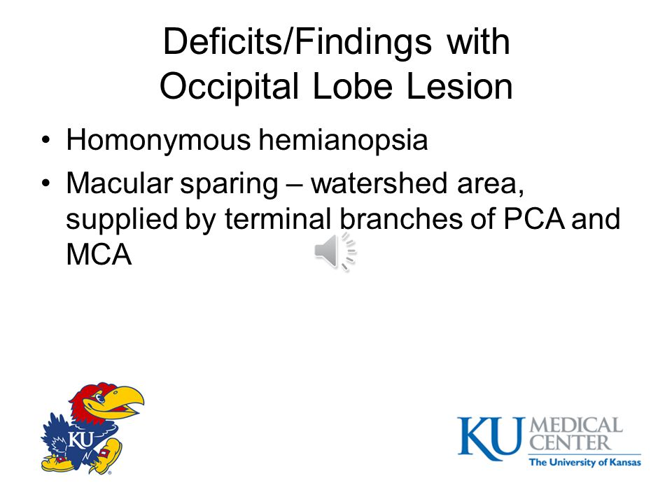 Deficits/Findings with Temporal Lobe Lesion Receptive aphasia (dominant laterosuperior) –Sensory amusia, sensory aprosodia (nondominant laterosuperior) Superior quadrantanopia Kluver-Bucy (bitemporal tip) (hyperorality, hypersexuality, etc) Amnesia (inferomedial aspect – amygdale, hippocampus) Impaired recognition of facial emotional expression (nondominant lateroinferior)