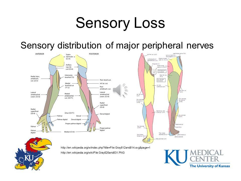 Sensory Loss Review dermatomal distribution www.backpain-guide.com/Chapter_Fig_folders/Ch06_Path_Folder/4Radiculopathy