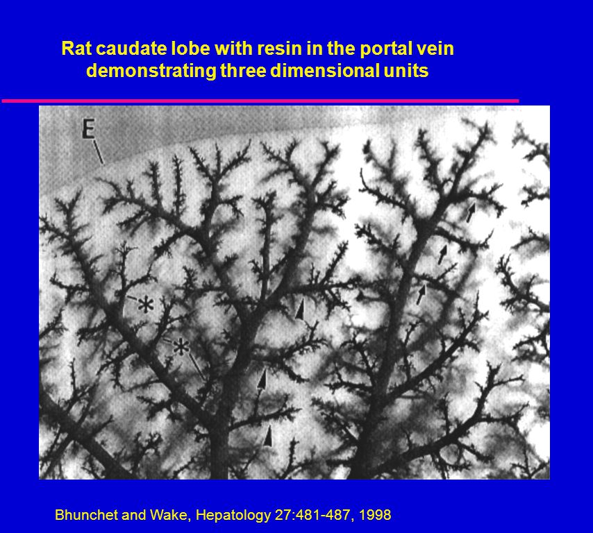 Bhunchet and Wake, Hepatology 27:481-487, 1998-487, 1998 Rat caudate lobe with resin in the portal vein demonstrating three dimensional units