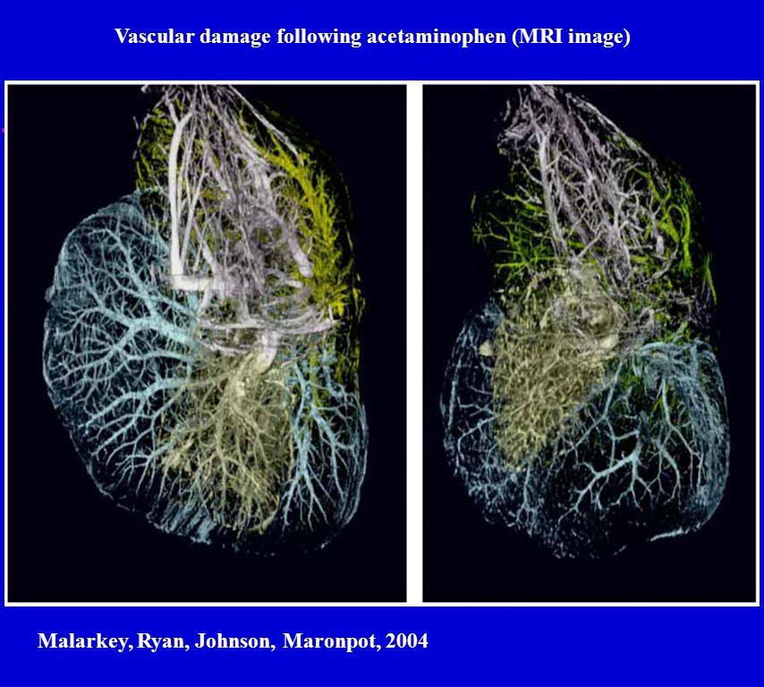 Vascular damage following acetaminophen (MRI image) Malarkey, Ryan, Johnson, Maronpot, 2004