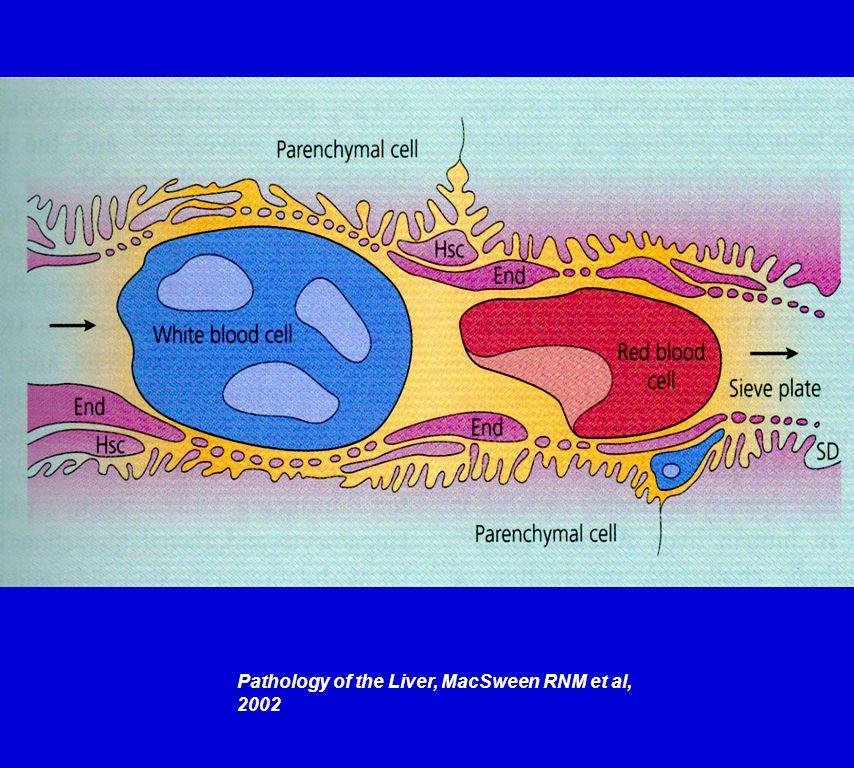 Pathology of the Liver, MacSween RNM et al, 2002