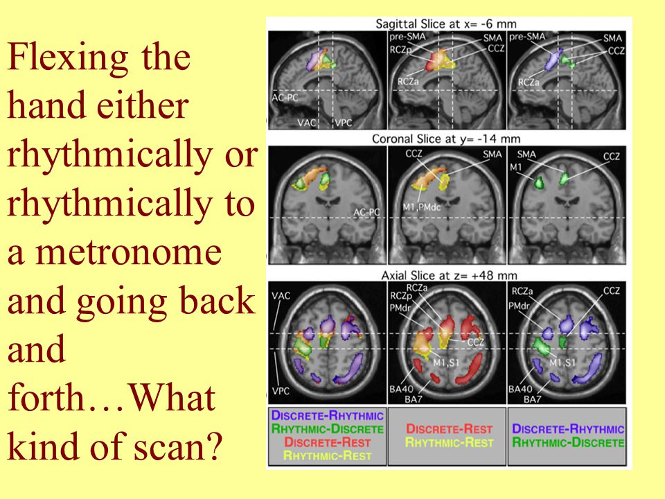 fMRI scan of a person and a face Looking at a face Asked to think about the face (hippocampus –memory thing lights up!) Asked to compare a new face to the face shown previously.