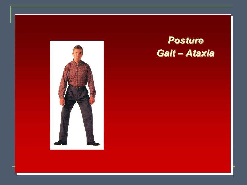 Posture Gait – Ataxia