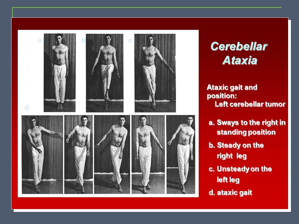 CerebellarAtaxia Ataxic gait and position: Left cerebellar tumor Left cerebellar tumor a. Sways to the right in a. Sways to the right in standing posi