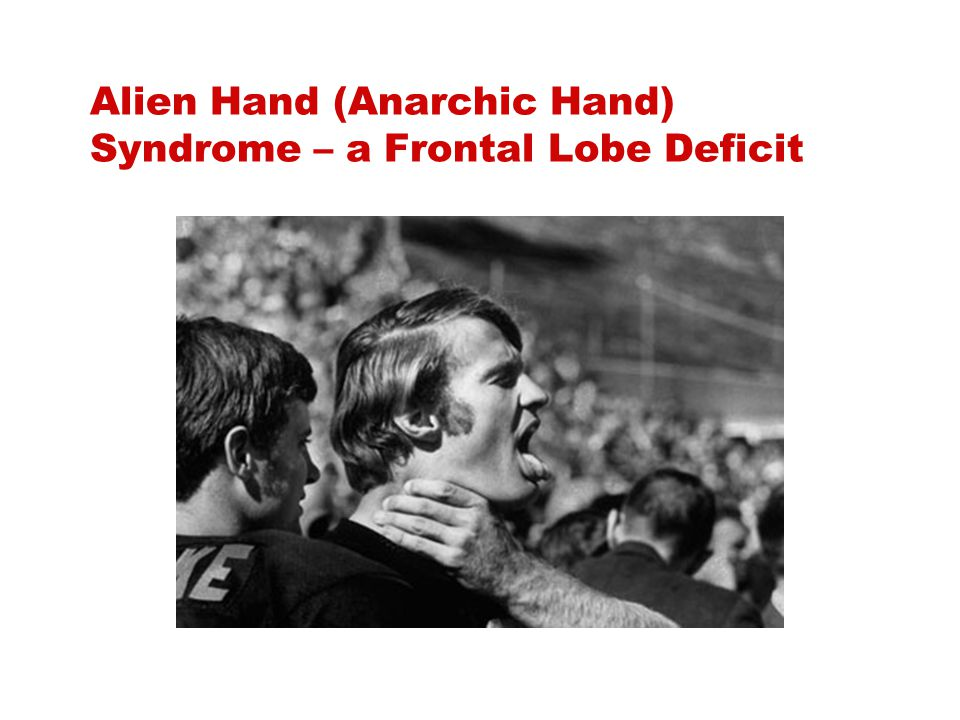 Alien Hand (Anarchic Hand) Syndrome – a Frontal Lobe Deficit