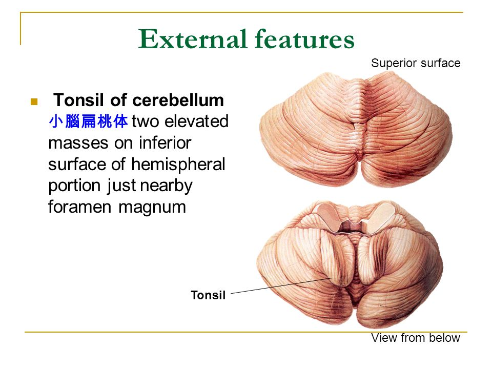External features Tonsil of cerebellum 小腦扁桃体 two elevated masses on inferior surface of hemispheral portion just nearby foramen magnum Tonsil Superior surface View from below