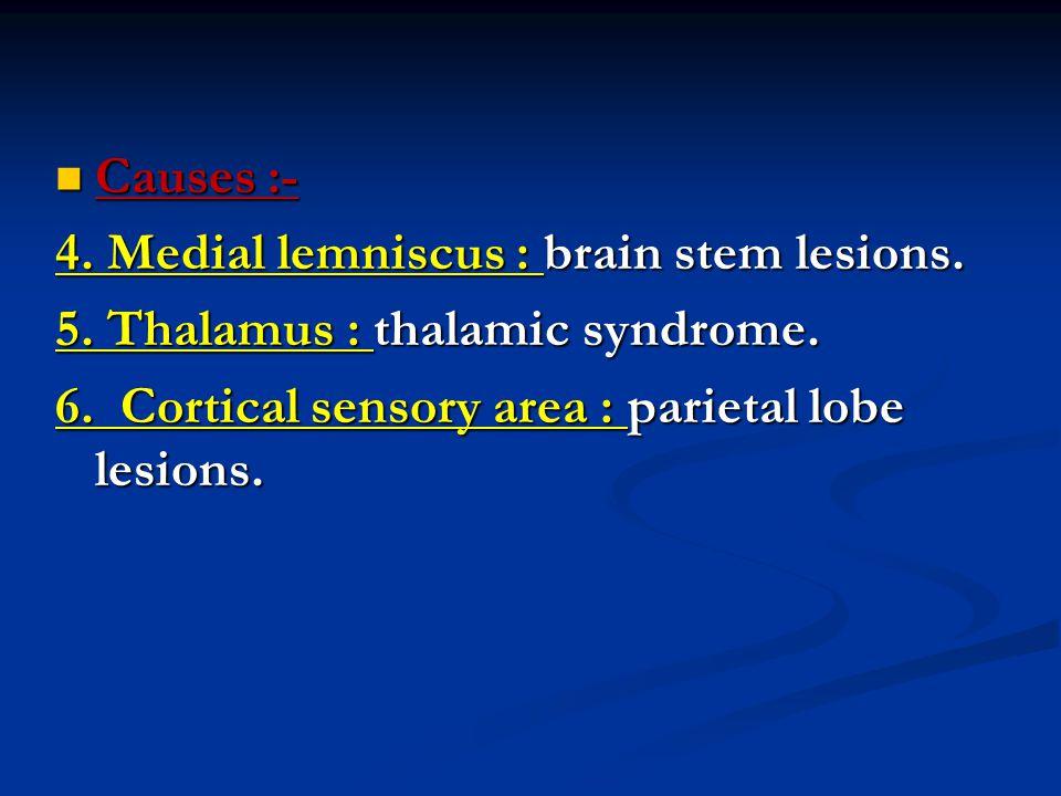 Causes :- Causes :- 4. Medial lemniscus : brain stem lesions.