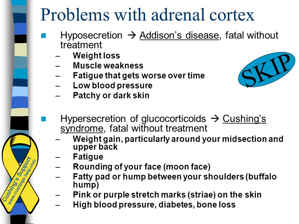 Problems with adrenal cortex Hyposecretion  Addison's disease, fatal without treatment –Weight loss –Muscle weakness –Fatigue that gets worse over ti