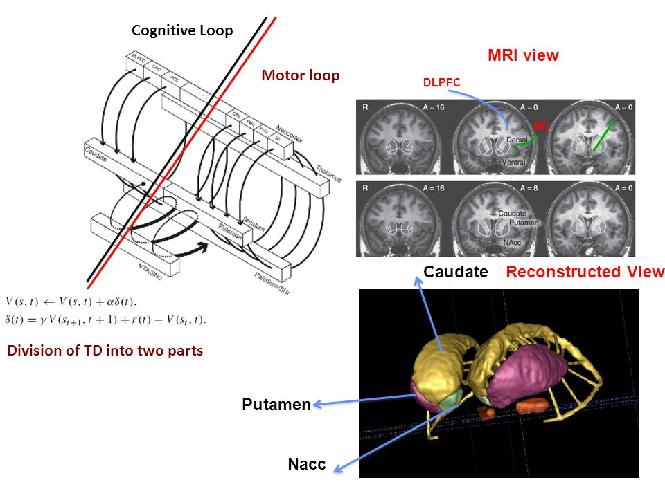Cognitive Loop Motor loop Division of TD into two parts Caudate Putamen Nacc MRI view Reconstructed View DLPFC MC