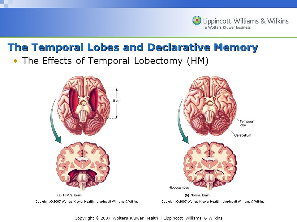 Copyright © 2007 Wolters Kluwer Health | Lippincott Williams & Wilkins The Temporal Lobes and Declarative Memory The Effects of Temporal Lobectomy (HM)