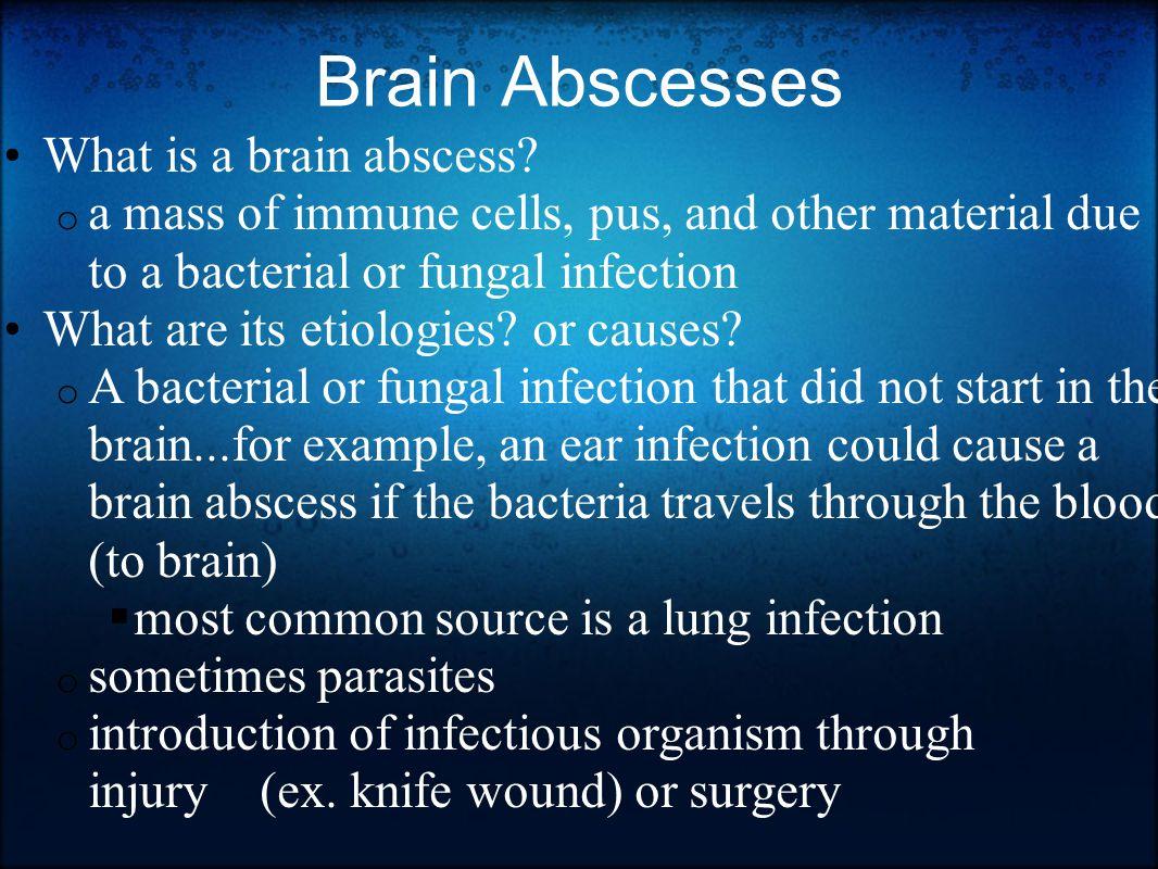 Brain Abscesses What is a brain abscess.