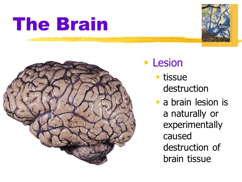 The Brain  Lesion  tissue destruction  a brain lesion is a naturally or experimentally caused destruction of brain tissue