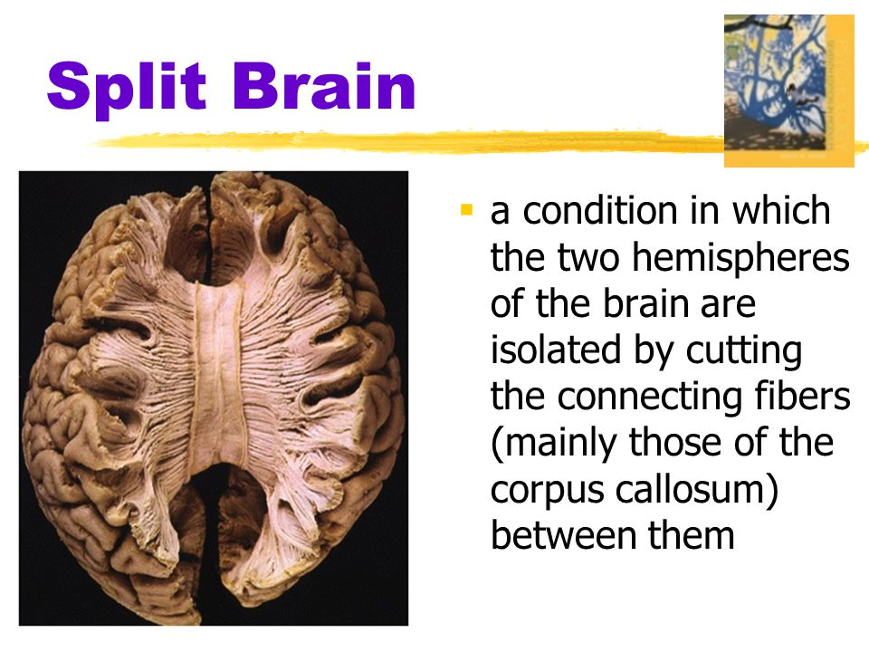 Split Brain  a condition in which the two hemispheres of the brain are isolated by cutting the connecting fibers (mainly those of the corpus callosum) between them
