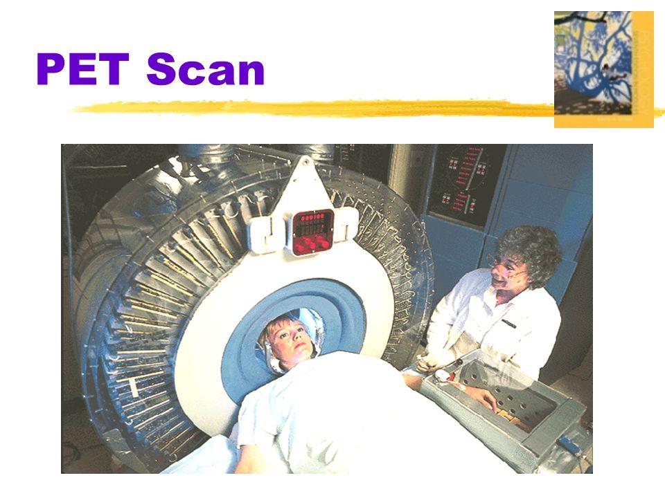 PET Scan