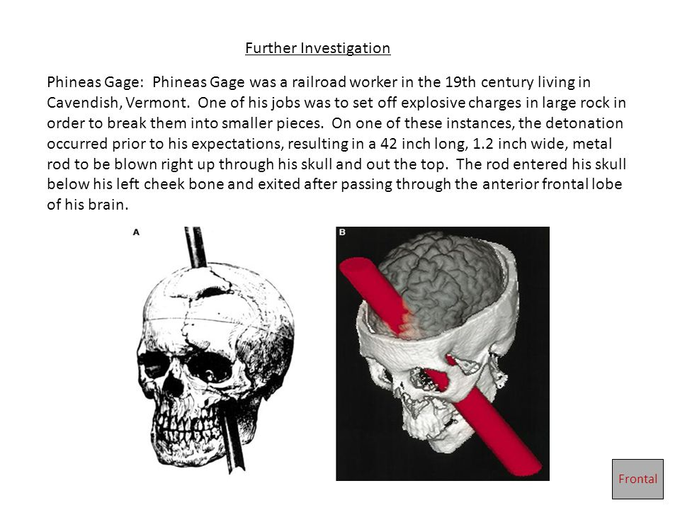 Further Investigation Phineas Gage: Phineas Gage was a railroad worker in the 19th century living in Cavendish, Vermont.