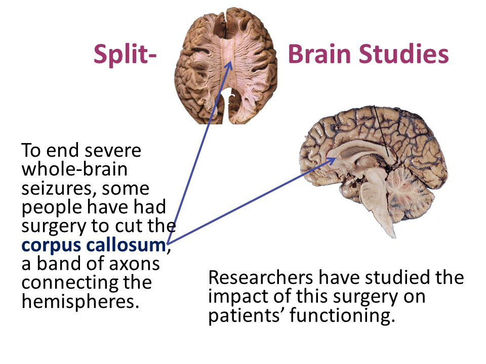 Brain Studies Researchers have studied the impact of this surgery on patients' functioning.