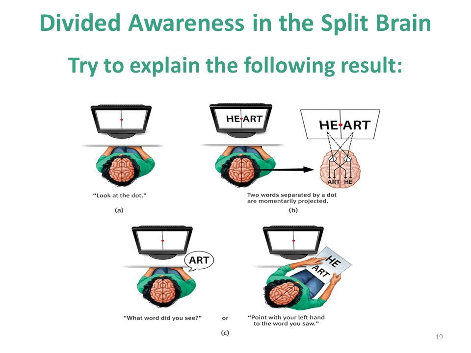 19 Divided Awareness in the Split Brain Try to explain the following result: