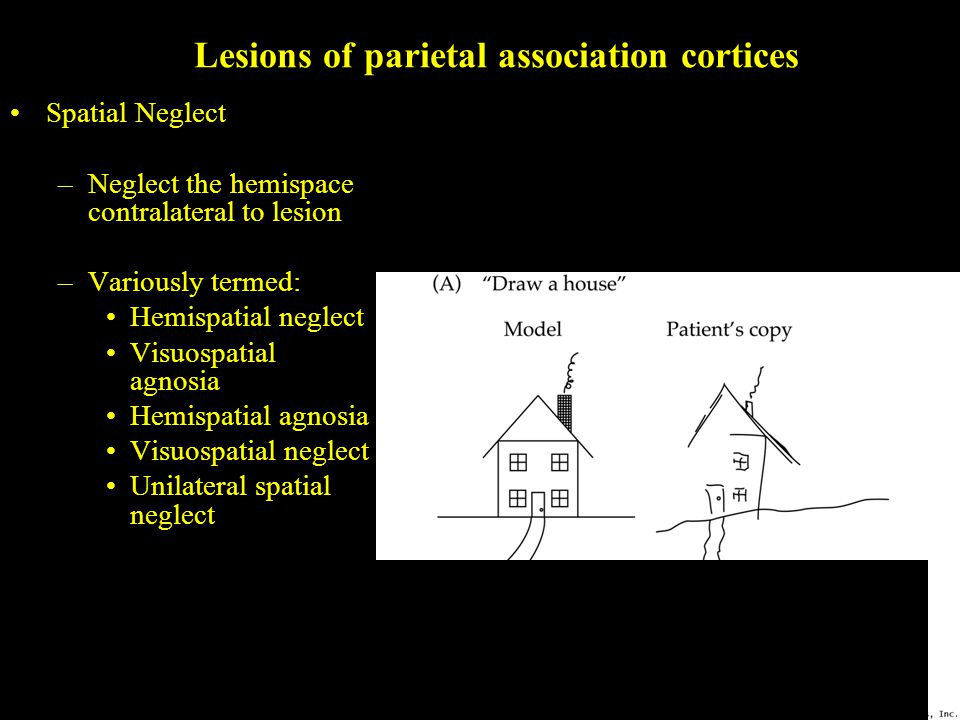 Lesions of parietal association cortices Spatial Neglect –Neglect the hemispace contralateral to lesion –Variously termed: Hemispatial neglect Visuospatial agnosia Hemispatial agnosia Visuospatial neglect Unilateral spatial neglect