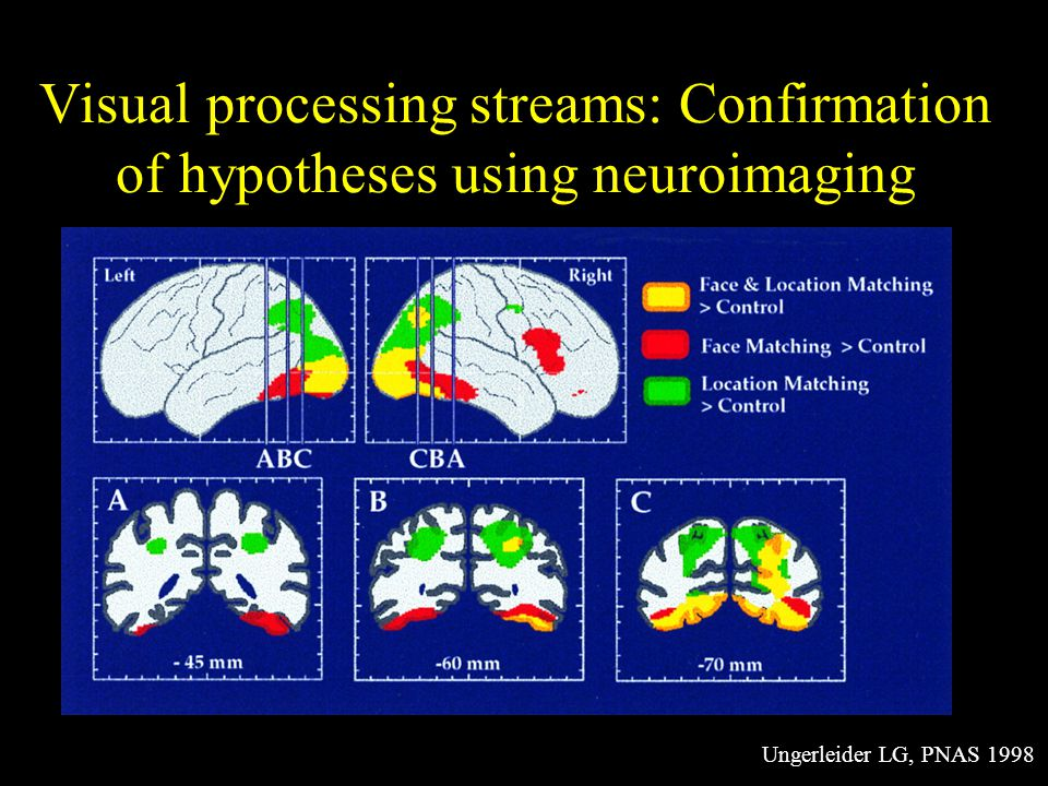 Visual processing streams: Confirmation of hypotheses using neuroimaging Ungerleider LG, PNAS 1998