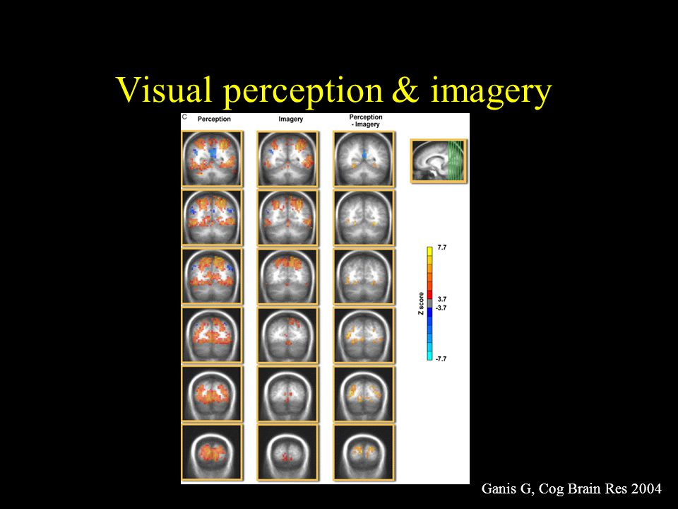 Visual perception & imagery Ganis G, Cog Brain Res 2004