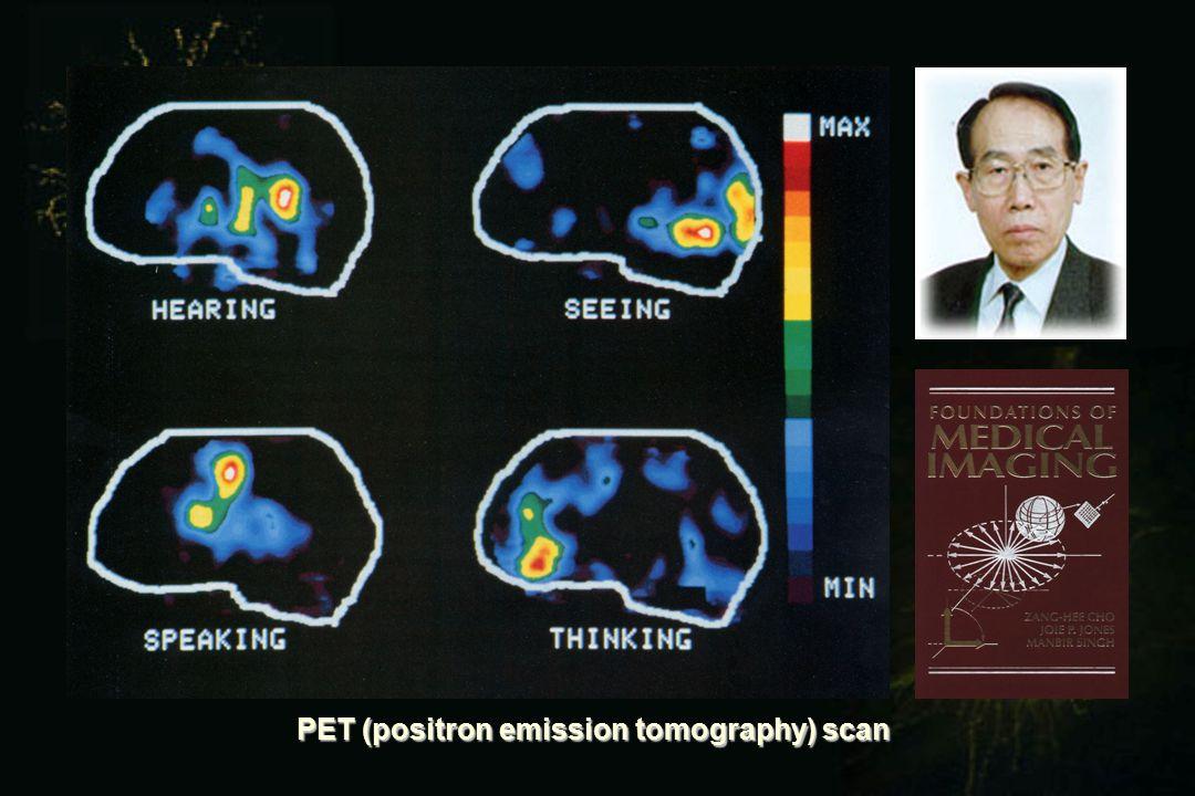 PET (positron emission tomography) scan