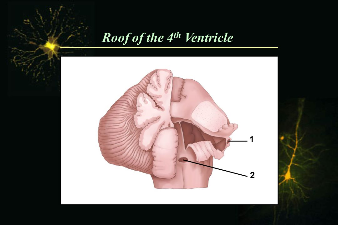 Roof of the 4 th Ventricle 1 2