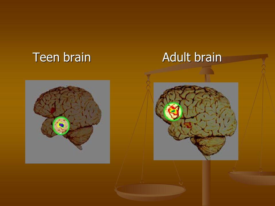 Teen brain Adult brain Teen brain Adult brain