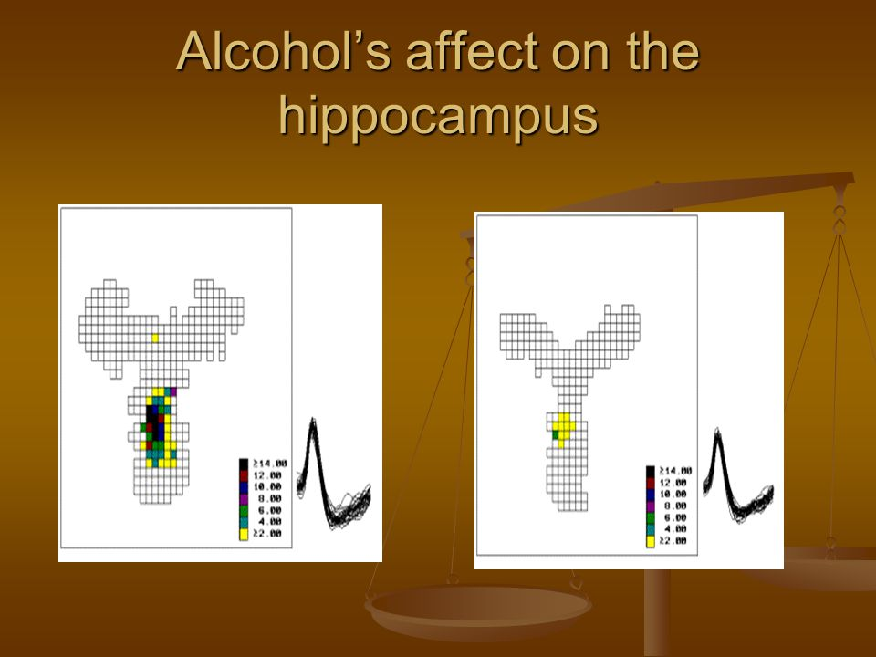 Alcohol's affect on the hippocampus