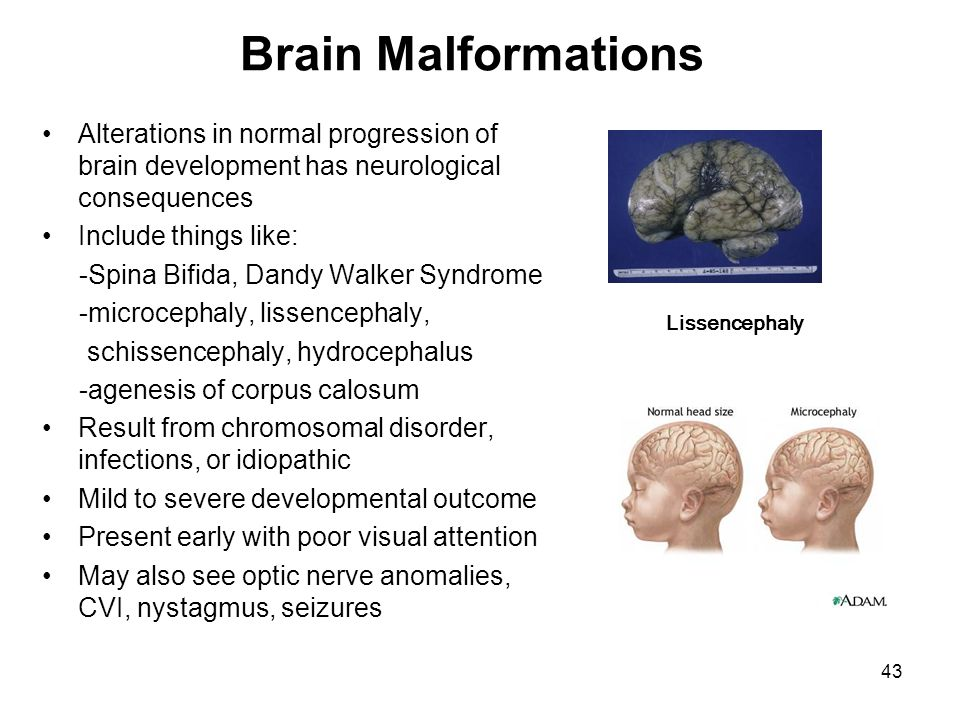 Brain Malformations Alterations in normal progression of brain development has neurological consequences Include things like: -Spina Bifida, Dandy Wal