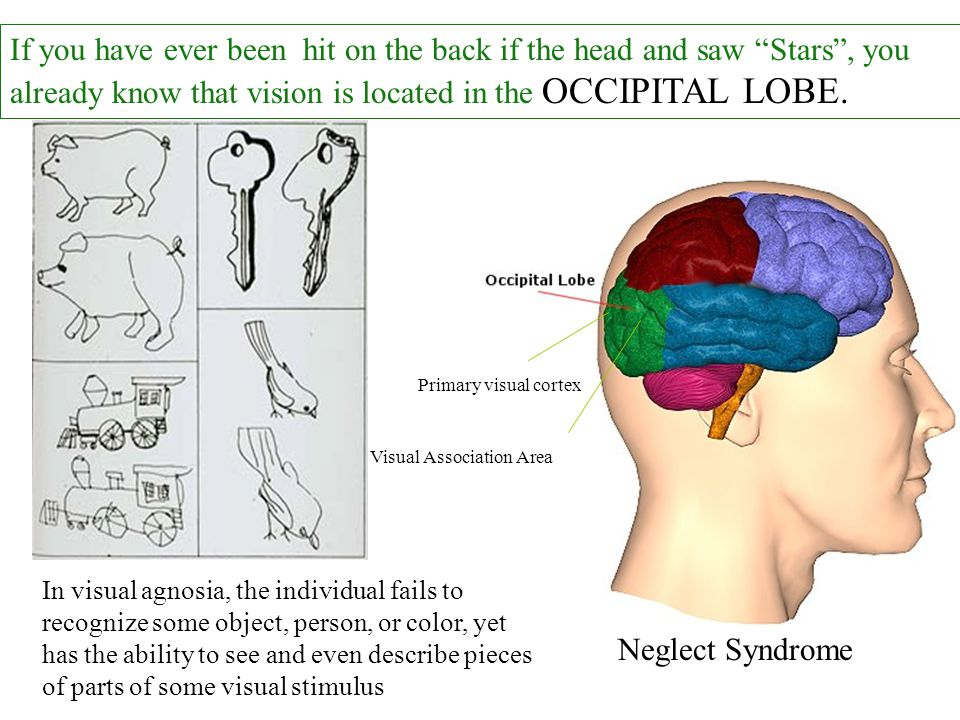 If you have ever been hit on the back if the head and saw Stars , you already know that vision is located in the OCCIPITAL LOBE.