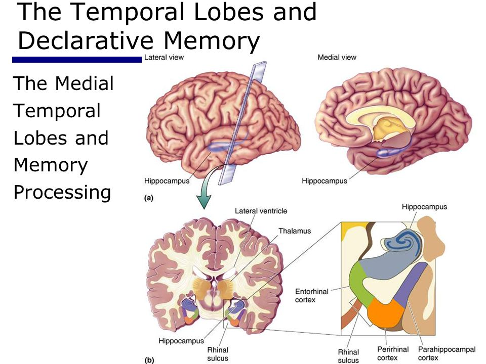 Psychology 35514 The Temporal Lobes and Declarative Memory The Medial Temporal Lobes and Memory Processing