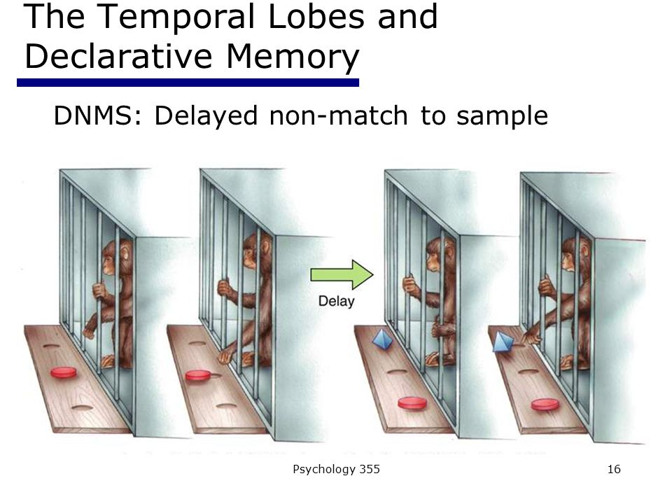Psychology 35516 The Temporal Lobes and Declarative Memory DNMS: Delayed non-match to sample