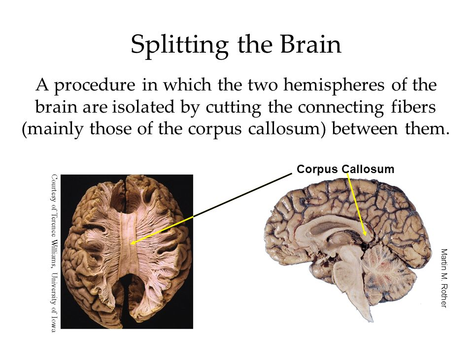 Splitting the Brain A procedure in which the two hemispheres of the brain are isolated by cutting the connecting fibers (mainly those of the corpus callosum) between them.