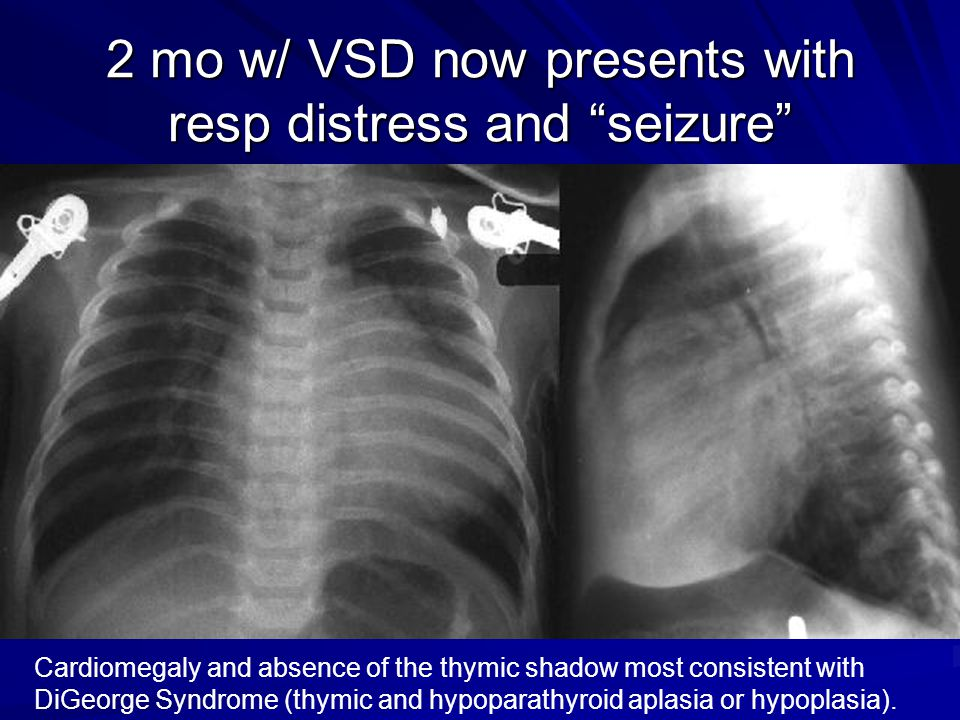 2 mo w/ VSD now presents with resp distress and seizure Cardiomegaly and absence of the thymic shadow most consistent with DiGeorge Syndrome (thymic and hypoparathyroid aplasia or hypoplasia).