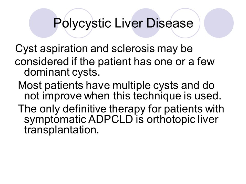 Polycystic Liver Disease Cyst aspiration and sclerosis may be considered if the patient has one or a few dominant cysts. Most patients have multiple c
