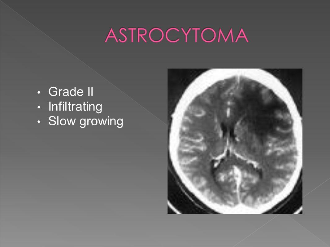 Grade II Infiltrating Slow growing