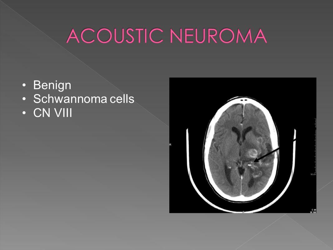 Benign Schwannoma cells CN VIII