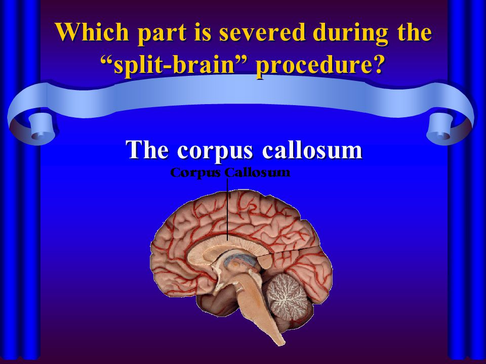"Which part is severed during the ""split-brain"" procedure? The corpus callosum"