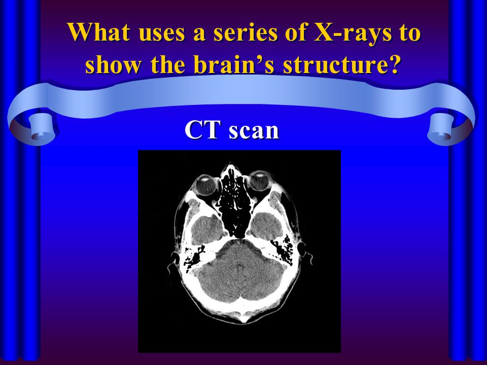 What uses a series of X-rays to show the brain's structure? CT scan