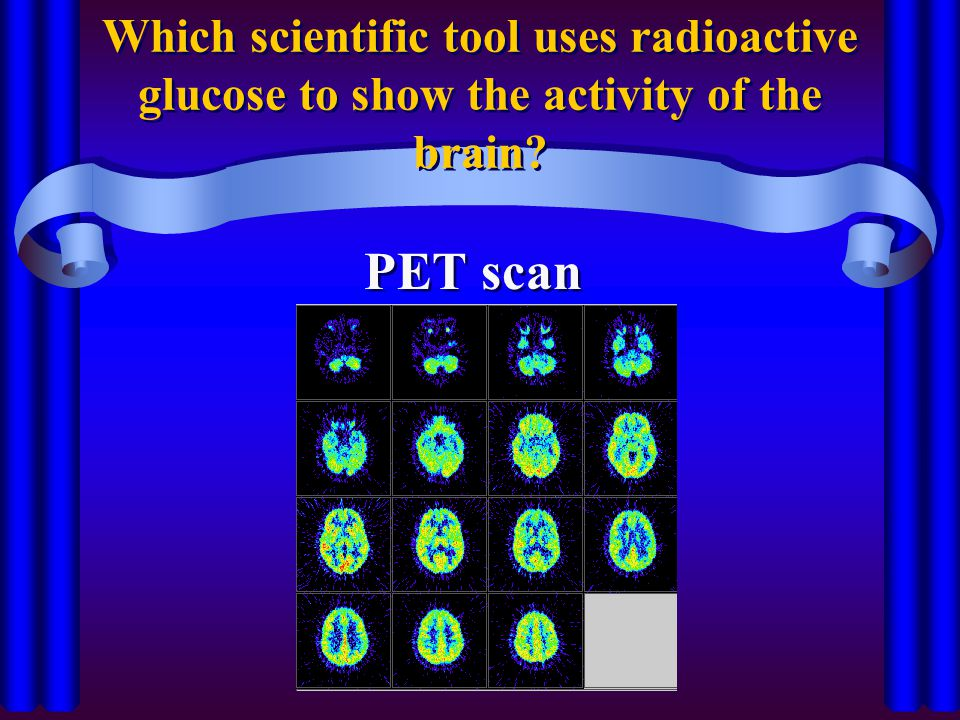 Which scientific tool uses radioactive glucose to show the activity of the brain? PET scan