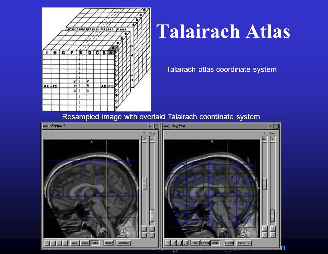 Siegfried.Schrei@Siemens.com Talairach Bounds