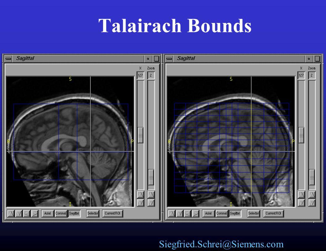 Siegfried.Schrei@Siemens.com Talairach levels of definition